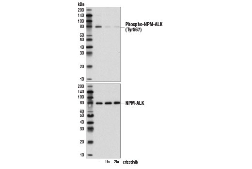 Monoclonal Antibody - Phospho-ALK (Tyr1507) (D6F1V) Rabbit mAb, UniProt ID Q9UM73, Entrez ID 238 #14678 - Rtk