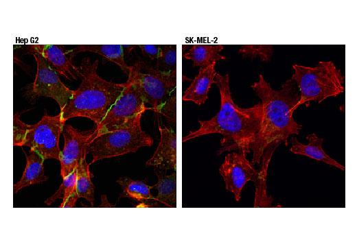 Confocal immunofluorescent analysis of Hep G2 (left) and SK-MEL-2 (right) cells using MRP1/ABCC1 (D7O8N) Rabbit mAb (green). Actin filaments were labeled with DyLight™ 554 Phalloidin #13504 (red). Blue pseudocolor = DRAQ5<sup>®</sup> #4084 (fluorescent DNA dye).