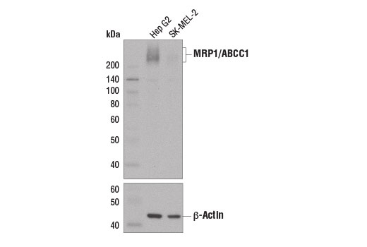 Western blot analysis of extracts from Hep G2 and SK-MEL-2 cells using MRP1/ABCC1 (D7O8N) Rabbit mAb (upper) and β-Actin (13E5) Rabbit mAb #4970 (lower).