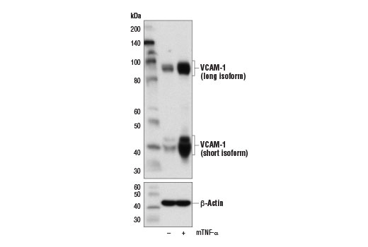 Polyclonal Antibody - VCAM-1 Antibody (Rodent Specific) - Western Blotting, UniProt ID P29533, Entrez ID 22329 #14694 - Immunology and Inflammation