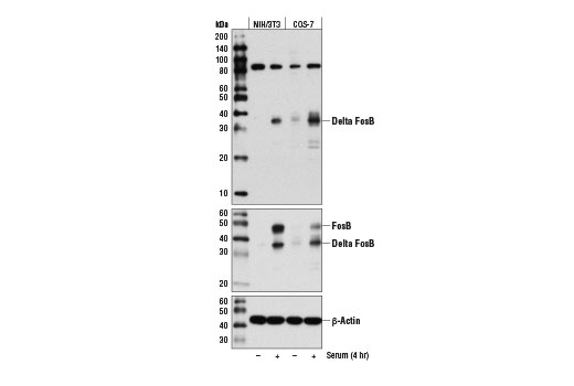 Western blot analysis of extracts from NIH/3T3 and COS-7 cells, serum-starved overnight and then left untreated (-) or serum-treated (4 hr; +), using Delta FosB (D3S8R) Rabbit mAb (upper), FosB Antibody #2263 (middle), and β-Actin (D6A8) Rabbit mAb #8457 (lower).