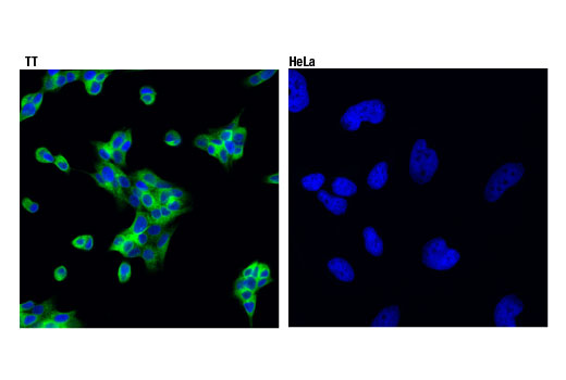 Confocal immunofluorescent analysis of TT (positive, left) and HeLa (negative, right) cells using Ret (D3D8R) Rabbit mAb (green). Blue pseudocolor = DRAQ5<sup>®</sup> #4084 (fluorescent DNA dye).