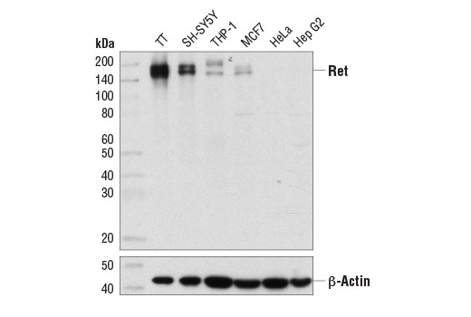 Western blot analysis of extracts from various cell lines using Ret (E1N9A) (Flow Preferred) Rabbit mAb (upper) and β-Actin (D6A8) Rabbit mAb #8457 (lower).