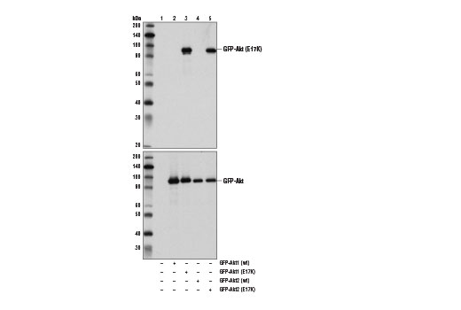 Western blot analysis of extracts from 293T cells, untransfected (lane 1) or transfected with GFP tagged wild-type Akt1 (lane 2), E17K mutant Akt1 (lane 3), wild-type Akt2 (lane 4), or mutant E17K Akt2 (lane 5), using Akt (E17K Mutant Specific) (D1T7P) Rabbit mAb (upper) and GFP (D5.1) XP<sup>®</sup> Rabbit mAb #2956 (lower).