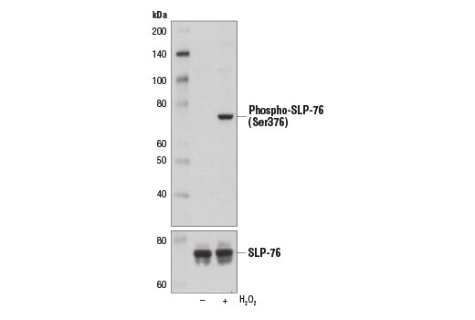 Image 6: T Cell Signaling Antibody Sampler Kit