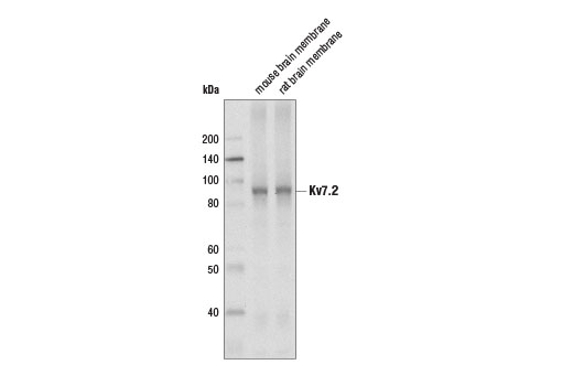 Western blot analysis of extracts from mouse and rat brain membrane using Kv7.2 (D9L5S) Rabbit mAb.