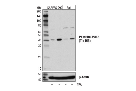 Western blot analysis of extracts from KARPAS-299 and Raji cell lines, untreated (-) or treated with TPA #4174 (200 nM, 30 min; +), using Phospho-Mcl-1 (Thr163) (D5M9D) Rabbit mAb (upper) and β-Actin (D6A8) Rabbit mAb #8457 (lower). KARPAS cell Line source: Dr Abraham Karpas at the University of Cambridge.
