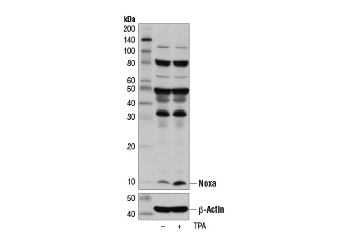Western blot analysis of extracts from serum starved Jurkat cells, untreated (-) or treated with TPA #4174 (10 ng/ml, 3 hr; +), using Noxa (D8L7U) Rabbit mAb (upper) and β-Actin (D6A8) Rabbit mAb #8457 (lower).