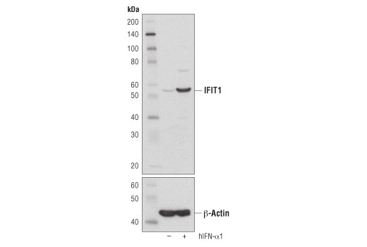 Western blot analysis of extracts from HeLa cells, untreated (-), or treated with Human Interferon-α1 (hIFN-α1) #8927 (10 ng/ml, 16 hr; +), using IFIT1 (D2X9Z) Rabbit mAb (upper) and β-Actin (D6A8) Rabbit mAb #8457 (lower).