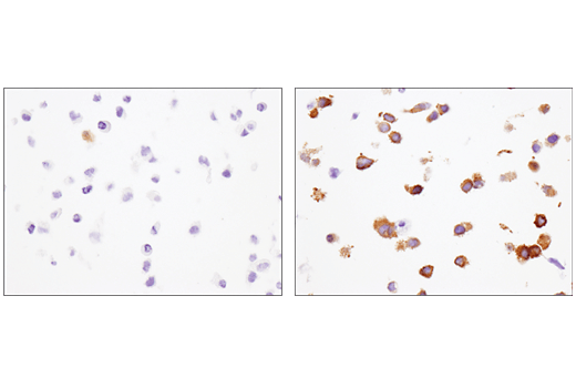 Immunohistochemical analysis of paraffin-embedded HeLa cell pellets, untreated (left) or treated with Human Interferon-alpha1 (hIFN-alpha1) #8927 (right) using IFIT1 (D2X9Z) Rabbit mAb.