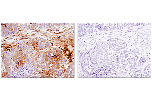 Immunohistochemical analysis of paraffin-embedded human ovarian carcinoma using IFIT1 (D2X9Z) Rabbit mAb in the presence of control peptide (left) or antigen-specific peptide (right).