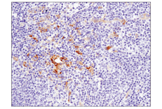 Immunohistochemical analysis of paraffin-embedded human B-cell non-Hodgkin's lymphoma using IFIT1 (D2X9Z) Rabbit mAb.