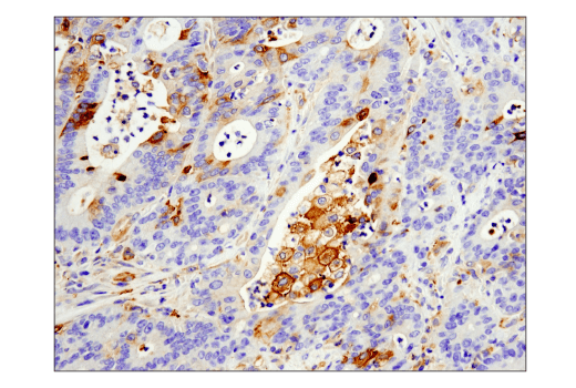 Immunohistochemical analysis of paraffin-embedded human colon adenocarcinoma using IFIT1 (D2X9Z) Rabbit mAb performed on the Leica® Bond™ Rx.