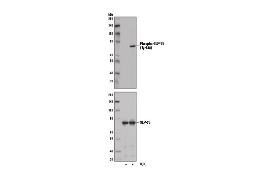 Western blot analysis of extracts from Jurkat cells, untreated (-) or H<sub>2</sub>O<sub>2</sub>-treated (11 mM, 1 min; +), using Phospho-SLP-76 (Tyr145) Antibody (upper) and SLP-76 Antibody #4958 (lower).
