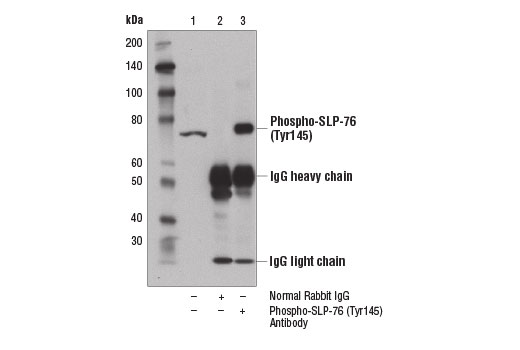Immunoprecipitation of phospho-SLP-76 (Tyr145) from Jurkat cell extracts treated with H<sub>2</sub>O<sub>2</sub> (11 mM, 1 min) using Normal Rabbit IgG #2729 (lane 2) or Phospho-SLP-76 (Tyr145) Antibody (lane 3). Lane 1 is 10% input. Western blot analysis was performed using Phospho-SLP-76 (Tyr145) Antibody.