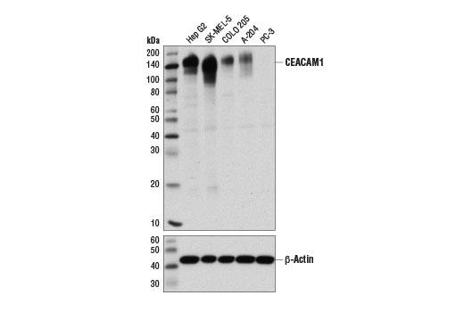 Human CEACAM1