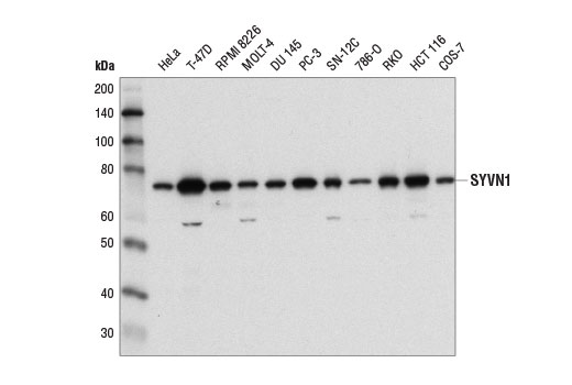 Western blot analysis of extracts from various cell lines using SYVN1 (D3O2A) Rabbit mAb.