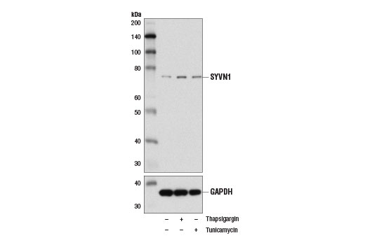 Western blot analysis of extracts from HeLa cells, untreated (-) or treated with Thapsigargin #12758 (1 μM, 16 hr; +) or Tunicamycin #12819 (5 μg/ml, 16 hr; +), using SYVN1 (D3O2A) Rabbit mAb (upper) and GAPDH (D16H11) XP<sup>®</sup> Rabbit mAb #5174 (lower).