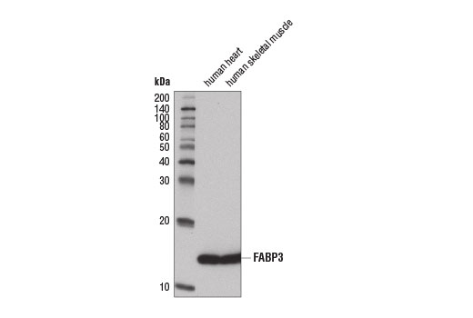 Monoclonal Antibody Immunoprecipitation Fatty Acid Oxidation