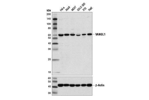 Monoclonal Antibody - VANGL1 (D1J7X) Rabbit mAb - Western Blotting, UniProt ID Q8TAA9, Entrez ID 81839 #14783 - #14783