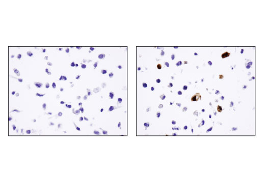 Immunohistochemical analysis of paraffin-embedded HeLa cell pellets, control (left) or DYKDDDDK Tag-transfected (right), using DYKDDDDK Tag (D6W5B) Rabbit mAb.