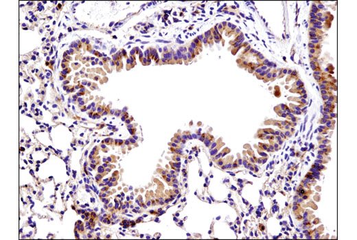 Immunohistochemical analysis of paraffin-embedded mouse lung using Bax (D3R2M) Rabbit mAb (Rodent Preferred).