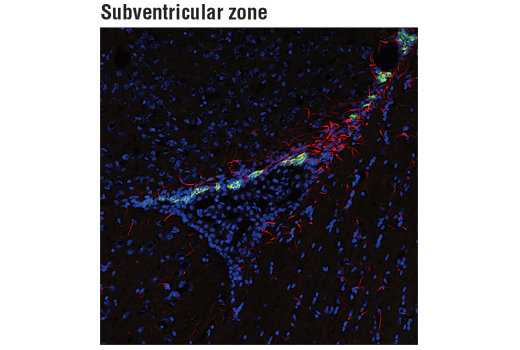 Confocal immunofluorescent analysis of Doublecortin (A8L1U) Rabbit mAb (green) and GFAP (GA5) Mouse mAb (Alexa Fluor<sup>®</sup> 555 Conjugate) #3656 (red) staining in the subventricular zone of adult mouse brain. Blue pseudocolor = DRAQ5<sup>®</sup> #4084 (fluorescent DNA dye).