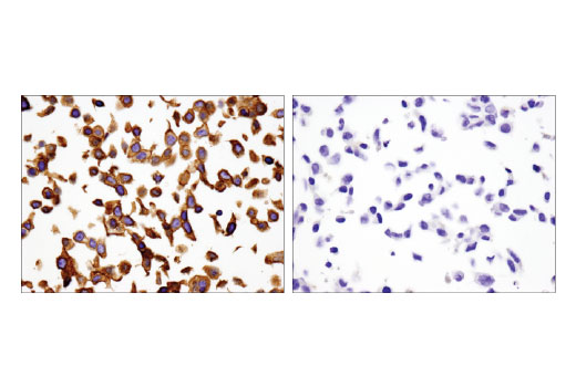 Immunohistochemical analysis of paraffin-embedded HT-29 (left) and LNCaP (right) cell pellets using Integrin β4 (D8P6C) XP<sup>®</sup> Rabbit mAb.