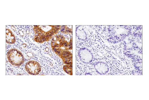 Immunohistochemical analysis of paraffin-embedded human colon carcinoma using Integrin β4 (D8P6C) XP<sup>®</sup> Rabbit mAb in the presence of control peptide (left) and antigen-specific peptide (right).