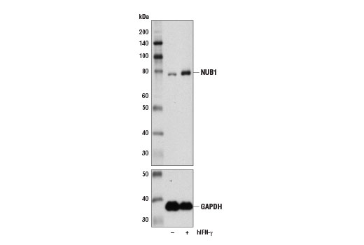 Western blot analysis of extracts from HeLa cells, untreated (-) or treated with Human Interferon-γ (hIFN-γ) #8901 (100 ng/ml, 72hr; +), using NUB1 Antibody (upper) and GAPDH (D16H11) XP<sup>®</sup> Rabbit mAb #5174 (lower).