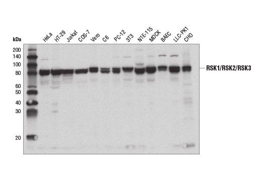 Western blot analysis of cell extracts from various cell lines using RSK1/RSK2/RSK3 (D7A2H) Rabbit mAb.