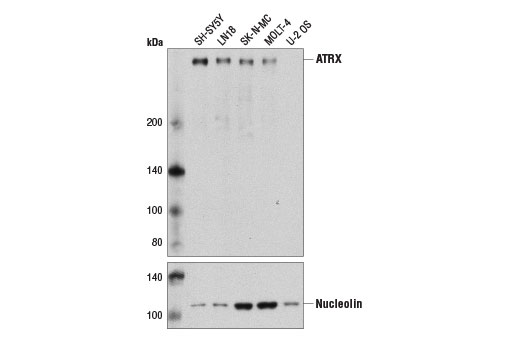 Western blot analysis of extracts from various cell lines using ATRX (D1N2E) Rabbit mAb (upper) and Nucleolin (D4C7O) Rabbit mAb #14574. As expected, the signal for ATRX is not present in the negative cell line U2OS.