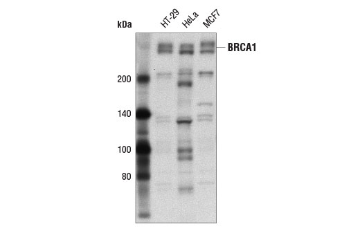 Western blot analysis of extracts from HT-29, HeLa, and MCF7 cells using BRCA1 (A8X9F) Rabbit mAb.
