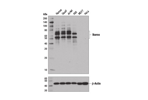 Western blot analysis of extracts from various cell lines using Ikaros (D6N9Y) Rabbit mAb (upper) and β-Actin (D6A8) Rabbit mAb #8457 (lower). As expected, detectable expression is restricted exclusively to lymphoid cell lines.