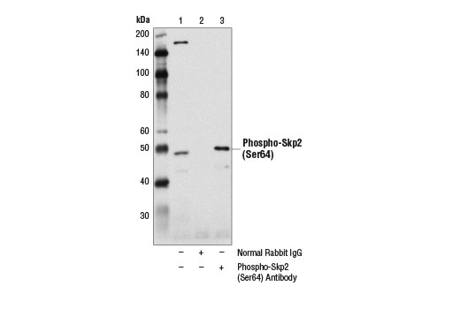 Immunoprecipitation of phosphorylated Skp2 from 293T cell extracts using Normal Rabbit IgG #2729 (lane 2) or Phospho-Skp2 (Ser64) Antibody (lane 3). Lane 1 is 10% input. Western blot analysis was performed using Phospho-Skp2 (Ser64) Antibody.