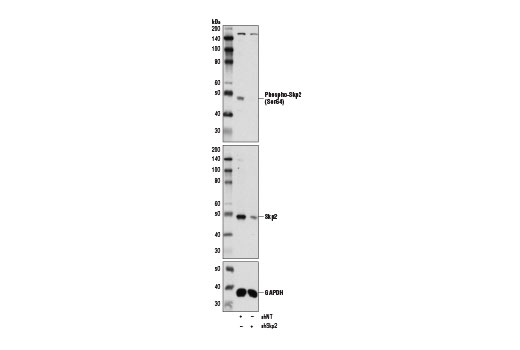 Polyclonal Antibody - Phospho-Skp2 (Ser64) Antibody - Immunoprecipitation, Western Blotting, UniProt ID Q13309, Entrez ID 6502 #14865, Cell Cycle / Checkpoint Control