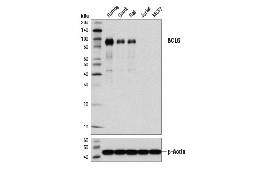 Western blot analysis of extracts from various cell lines using BCL6 (D4I2V) XP<sup>®</sup> Rabbit mAb (upper) and β-Actin (D6A8) Rabbit mAb #8457 (lower).