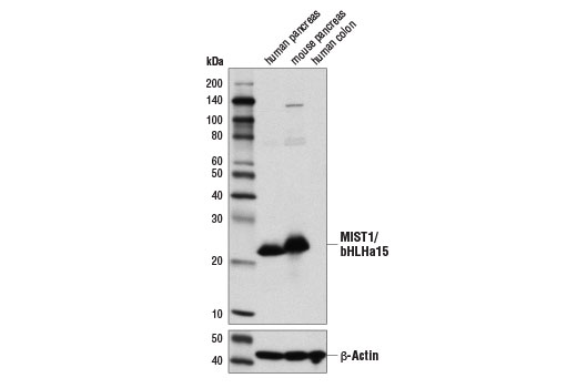 Western blot analysis of extracts from human pancreas, mouse pancreas, and human colon using MIST1/bHLHa15 (D7N4B) XP<sup>®</sup> Rabbit mAb (upper) and β-Actin (D6A8) Rabbit mAb #8457 (lower).
