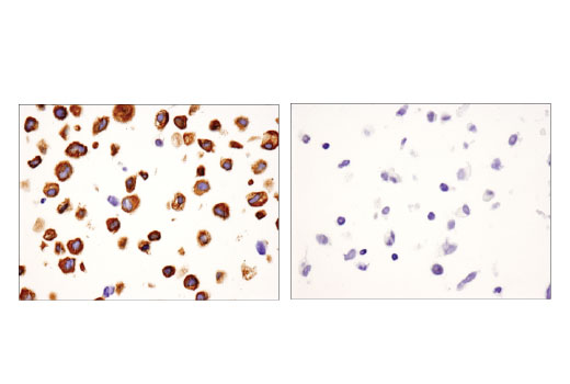 Immunohistochemical analysis of paraffin-embedded PC-3 (left, positive) and LOX-IMVI (right, negative) cell pellets using USP9X (D4Y7W) Rabbit mAb.