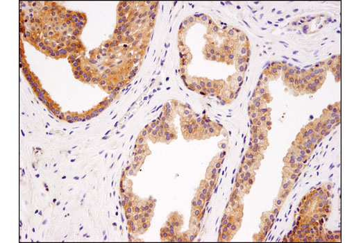 Immunohistochemical analysis of paraffin-embedded human prostate carcinoma using USP9X (D4Y7W) Rabbit mAb.