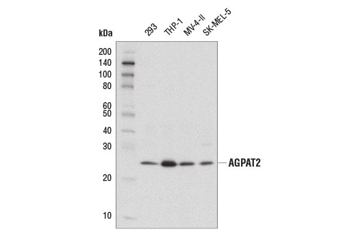 Western blot analysis of extracts from various cell lines using AGPAT2 (D8W9B) Rabbit mAb.