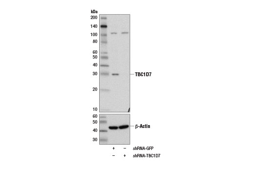 Western blot analysis of extracts from HeLa cells expressing either GFP shRNA (shRNA-GFP) or TBC1D7 shRNA (shRNA-TBC1D7) using TBC1D7 (D8K1Y) Rabbit mAb and β-Actin (13E5) Rabbit mAb #4970.
