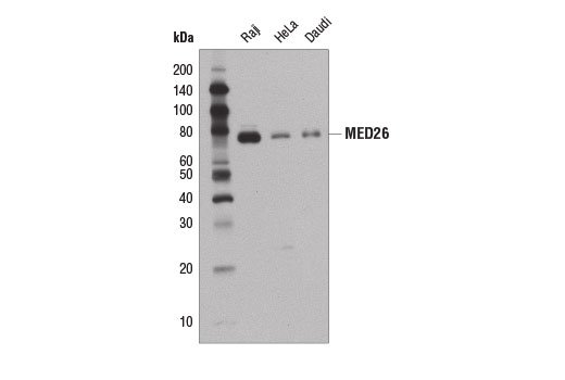 Monoclonal Antibody - MED26 (D4B1X) Rabbit mAb, UniProt ID O95402, Entrez ID 9441 #14950 - #14950