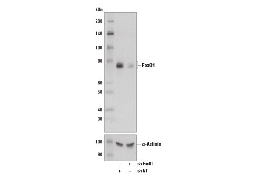 Western blot analysis of extracts from 293T cells expressing either non-targeting shRNA (shNT) or Fox01 shRNA (shFoxO1) using FoxO1 (D7C1H) Mouse mAb (upper) and α-Actinin (D6F6) XP<sup>®</sup> Rabbit mAb #6487 (lower). 293T shNT and shFoxO1 cells were kindly provided by Dr. Anne Brunet, Stanford University, Stanford CA.