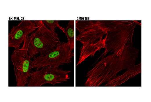 Confocal immunofluorescent analysis of SK-MEL-28 (left) and GM07166 (right) cells using p95/NBS1 (D6J5I) Rabbit mAb (green). Actin filaments were labeled with DyLight™ 554 Phalloidin #13054.