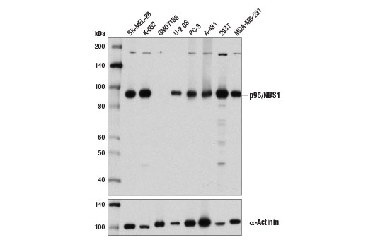 Western blot analysis of extracts from various cell lines using p95/NBS1 (D6J5I) Rabbit mAb (upper) and α-Actinin (D6F6) XP<sup>®</sup> Rabbit mAb #6487 (lower).