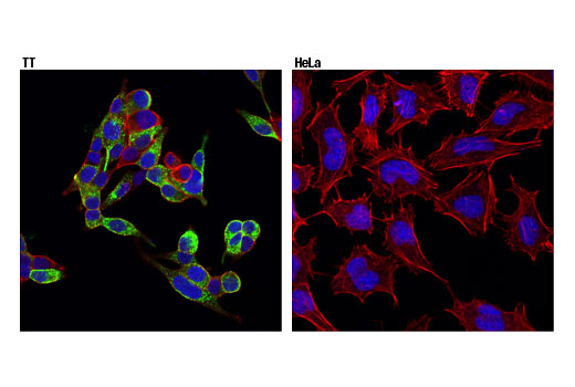 Confocal immunofluorescent analysis of TT (left, positive) and HeLa (right, negative) cells using CGRP (D5R8F) Rabbit mAb (green). Actin filaments were labeled with DyLight™ 554 Phalloidin #13054 (red). Blue pseudocolor = DRAQ5<sup>®</sup> #4084 (fluorescent DNA dye).