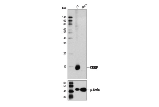 Western blot analysis of extracts from TT and HeLa cells using CGRP (D5R8F) Rabbit mAb (upper) and β-Actin (D6A8) Rabbit mAb #8457 (lower).