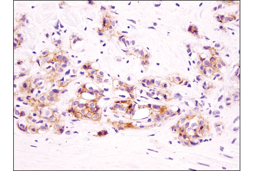 Immunohistochemical analysis of paraffin-embedded human breast carcinoma using EphB4 (D1C7N) Rabbit mAb.