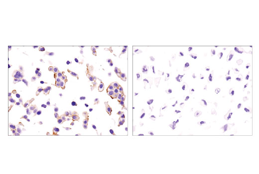 Immunohistochemical analysis of paraffin-embedded MCF7 (left) and 786-O (right) cell pellets using EphB4 (D1C7N) Rabbit mAb.